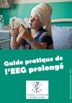 Guide pratique de l'EEG prolongé